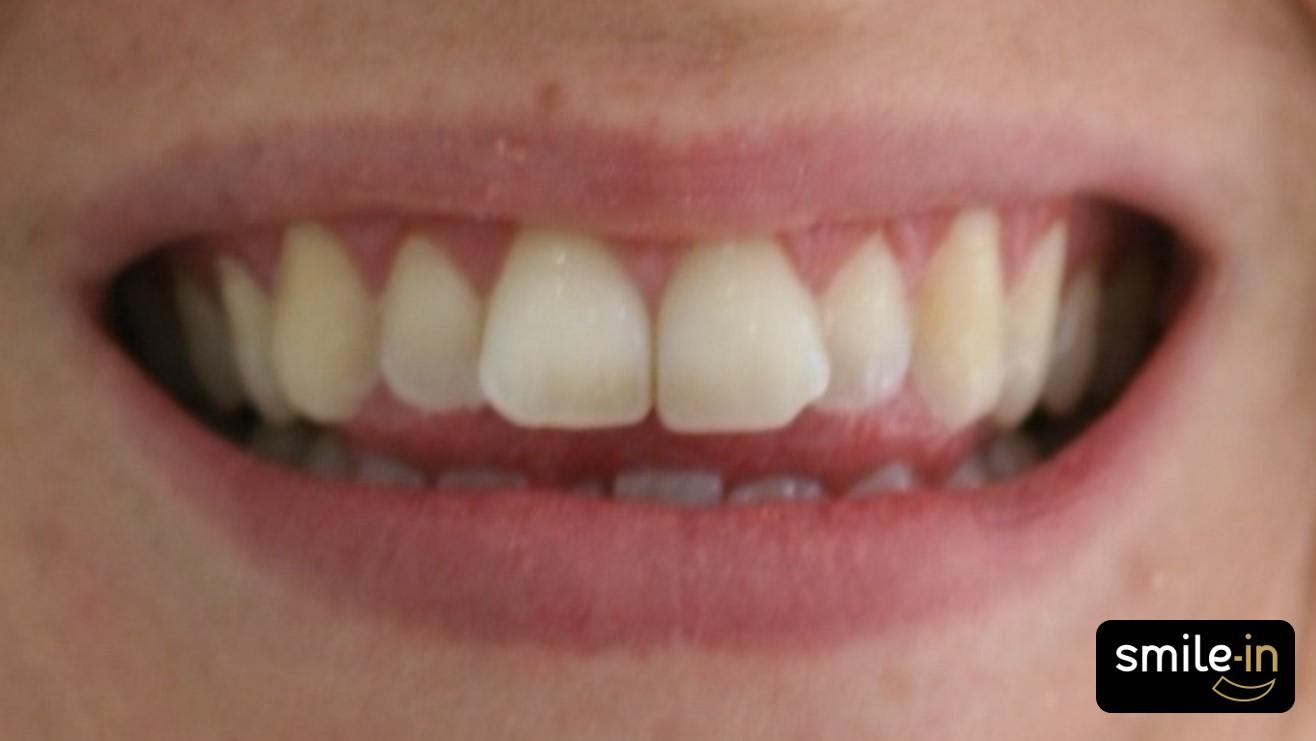Mordida Abierta Anterior con ortodoncia invisible - antes