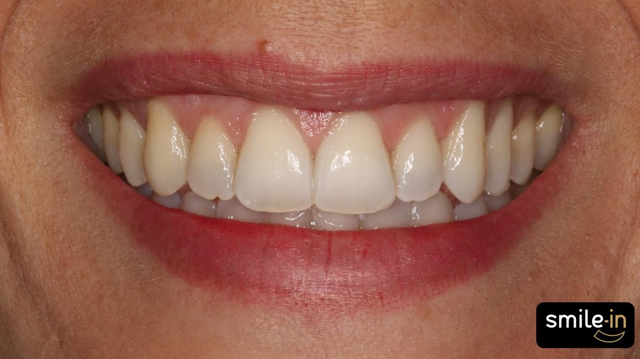 Mordida Abierta Anterior con ortodoncia invisible - despues